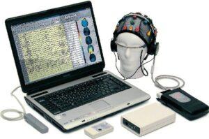 Микрополяризация мозга
