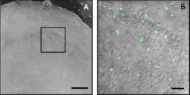Мікрофото культивованого зрізу головного мозку миші