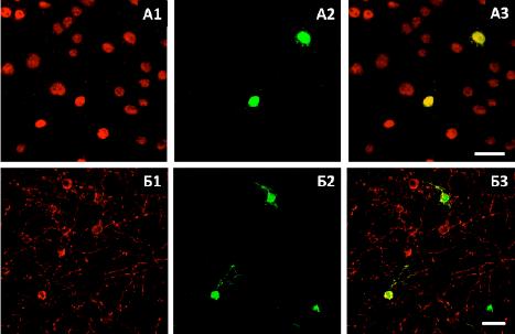 Імуногістохімічний аналіз сумісної культури GFP-позитивних ММСК та зрізів головного мозку миші